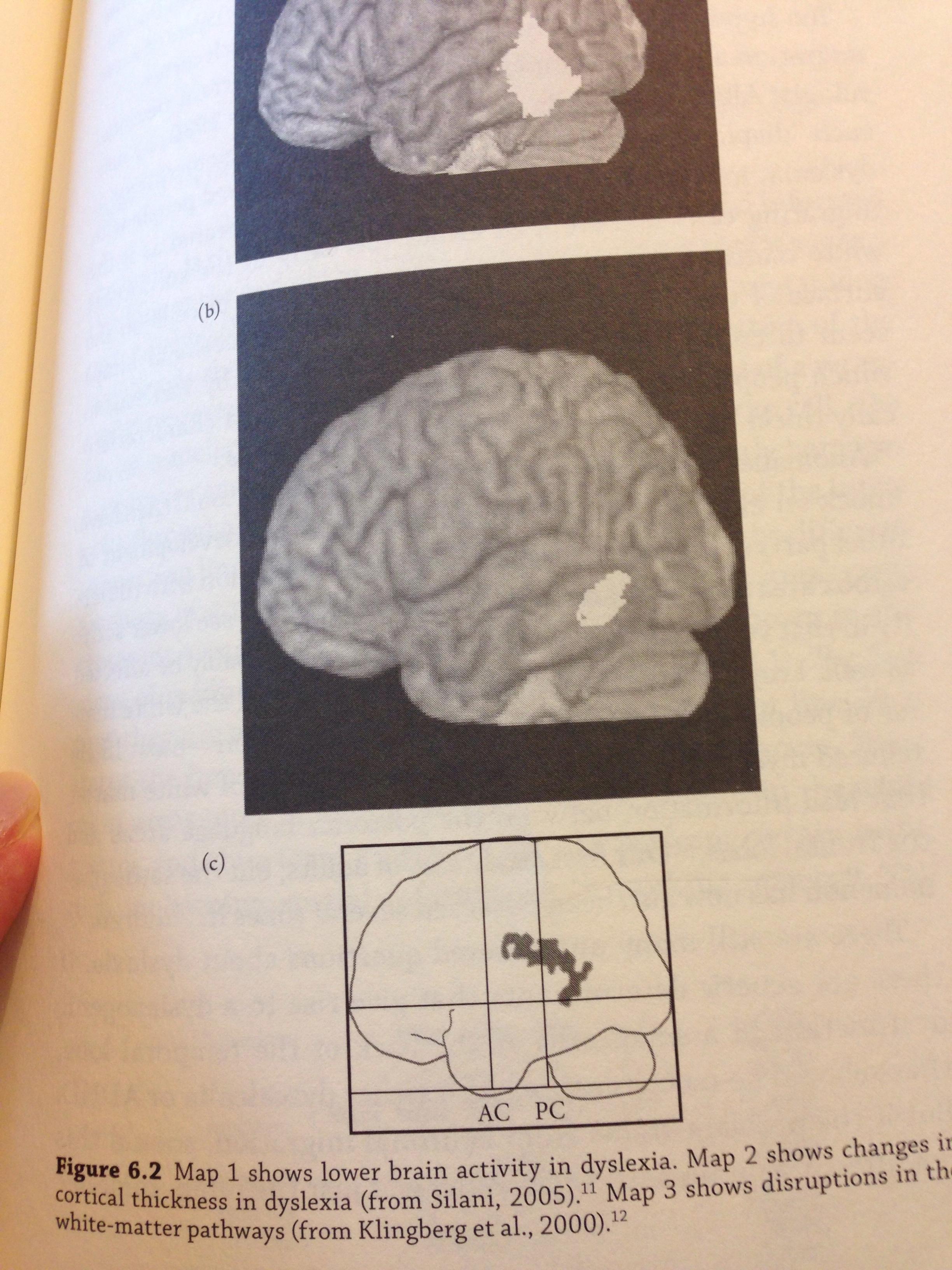 neuroscience, breinleren